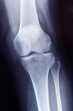 中高年の膝の痛みに対する関節鏡手術の効果はわずかしかない