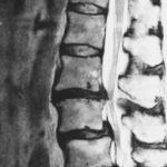 腰椎ヘルニアは怖くない 早く治すための対処法