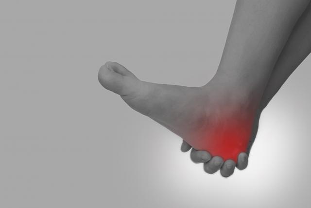 足の痛み、足底腱膜炎