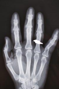 指の関節ポキポキ、超音波で解明